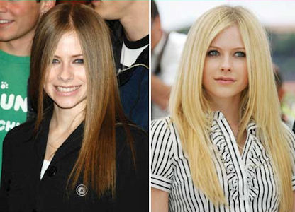 Avril Nose Job